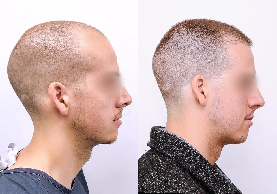 FUE-Hair-Transplant-Before-After-P17 (4)