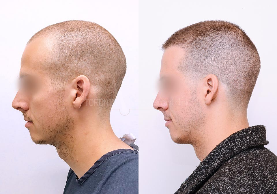 FUE-Hair-Transplant-Before-After-P17 (5)
