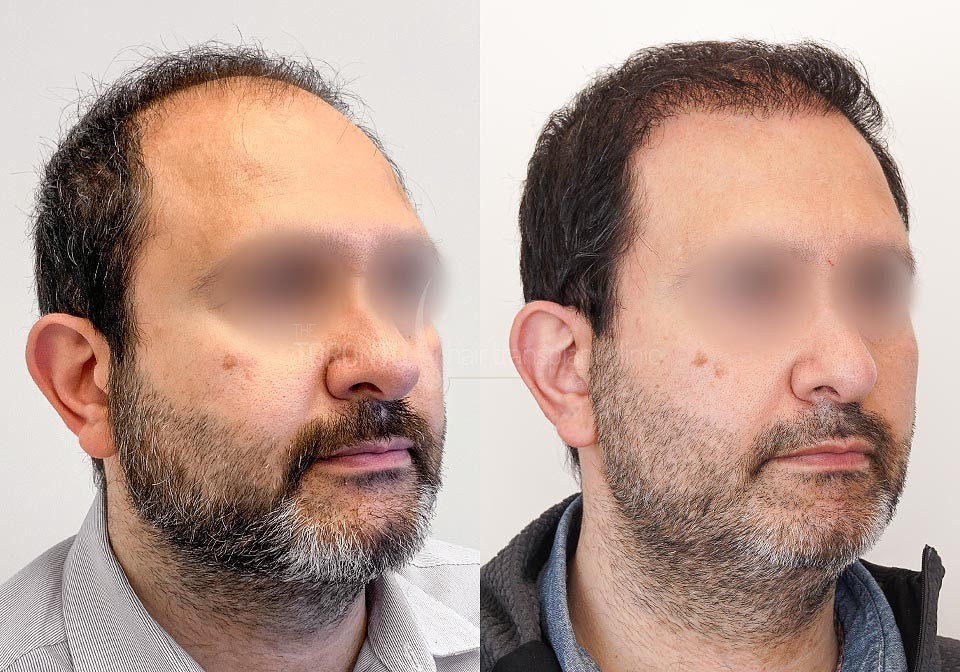 FUE-Hair-Transplant-Before-After-P18 (1)