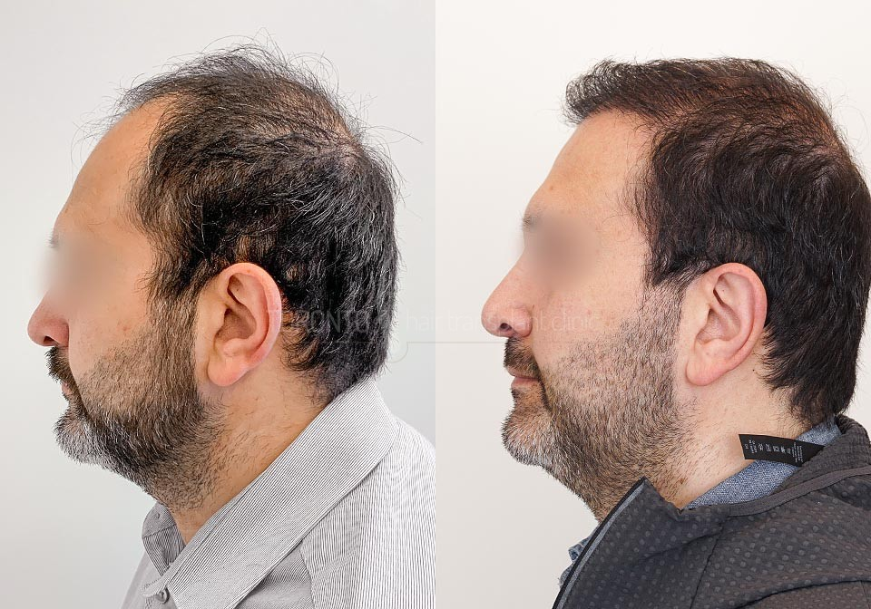 FUE-Hair-Transplant-Before-After-P18 (2)