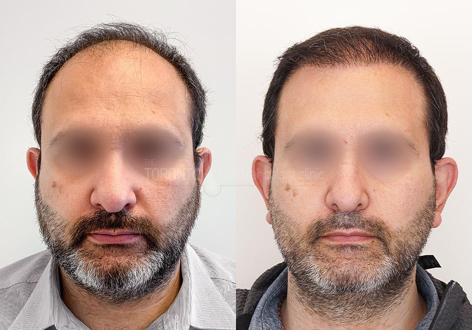 FUE-Hair-Transplant-Before-After-P18 (3)