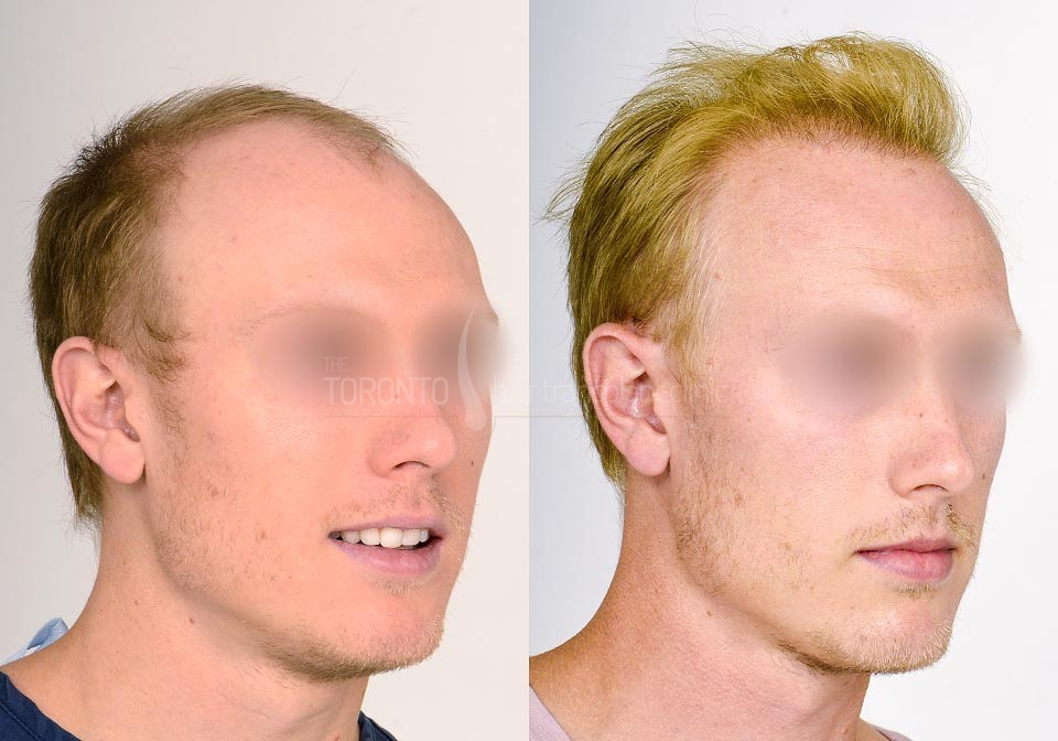 FUE-Hair-Transplant-Before-After-P19 (1)