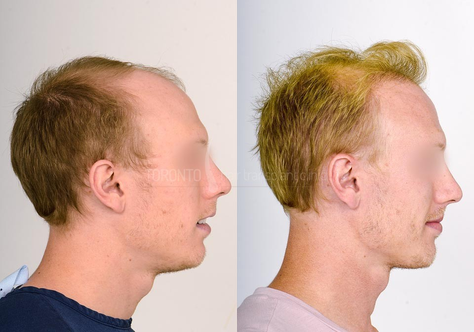 FUE-Hair-Transplant-Before-After-P19 (2)