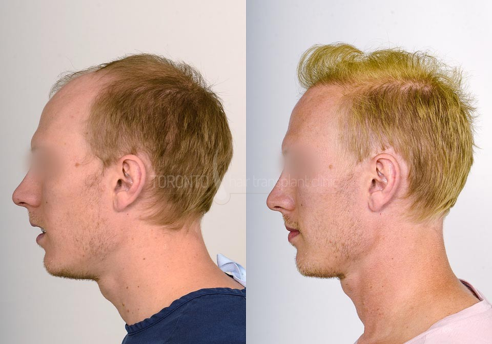 FUE-Hair-Transplant-Before-After-P19 (3)