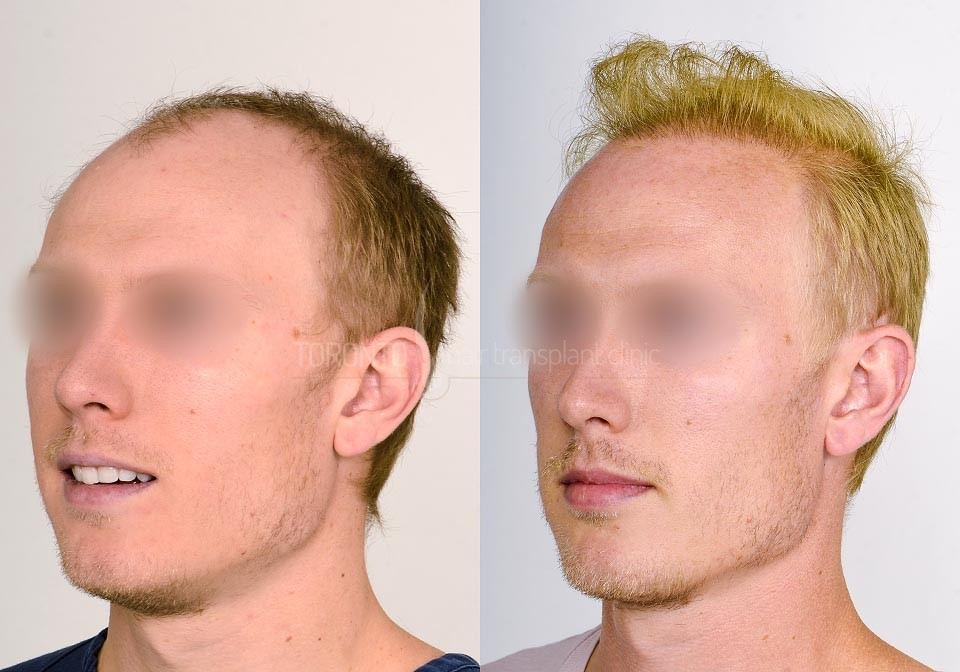 FUE-Hair-Transplant-Before-After-P19 (4)