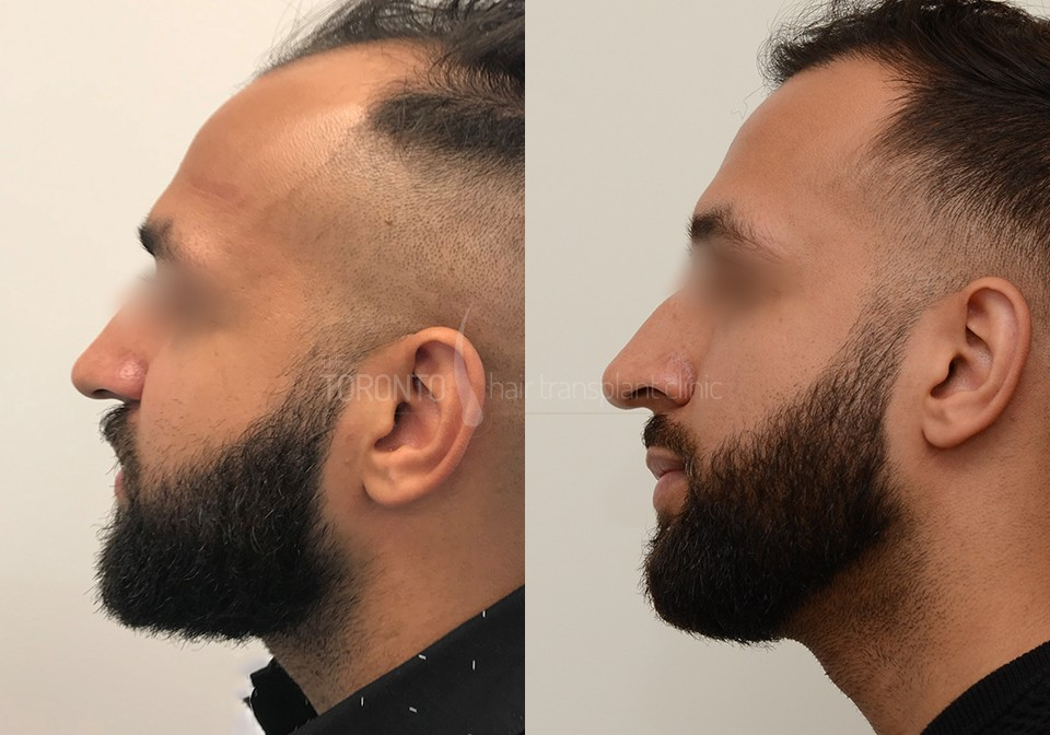 FUE-Hair-Transplant-Before-After-P2 (1)
