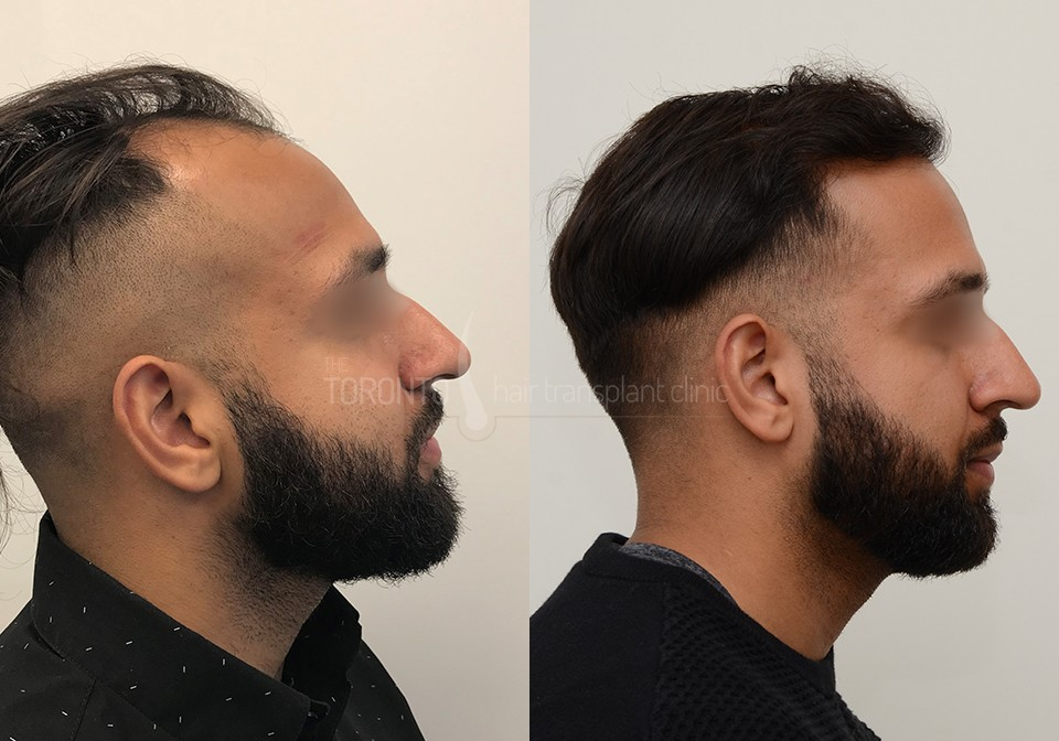 FUE-Hair-Transplant-Before-After-P2 (2)