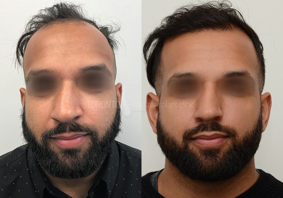 FUE-Hair-Transplant-Before-After-P2 (3)