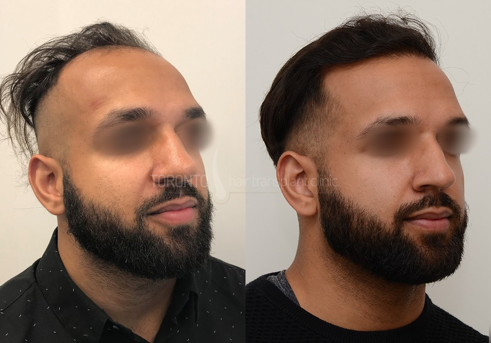 FUE-Hair-Transplant-Before-After-P2 (4)