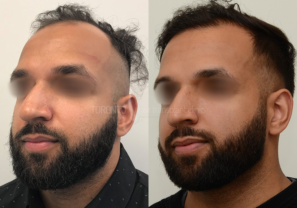 FUE-Hair-Transplant-Before-After-P2 (5)