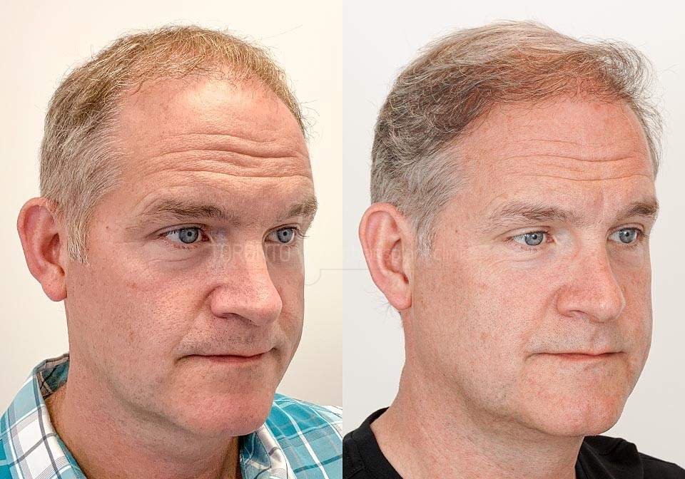FUE-Hair-Transplant-Before-After-P20 (1)