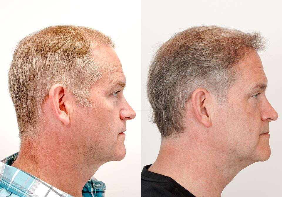 FUE-Hair-Transplant-Before-After-P20 (2)