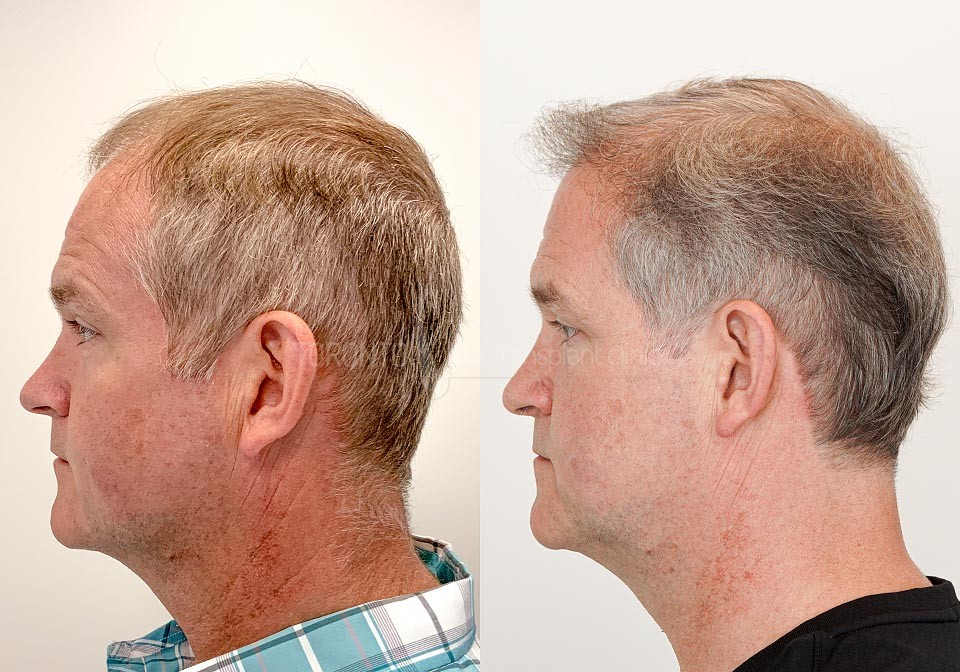 FUE-Hair-Transplant-Before-After-P20 (3)