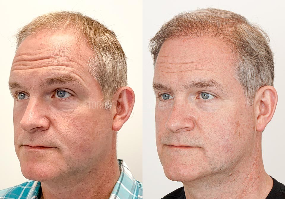 FUE-Hair-Transplant-Before-After-P20 (4)
