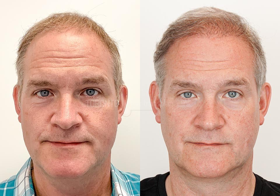 FUE-Hair-Transplant-Before-After-P20 (5)