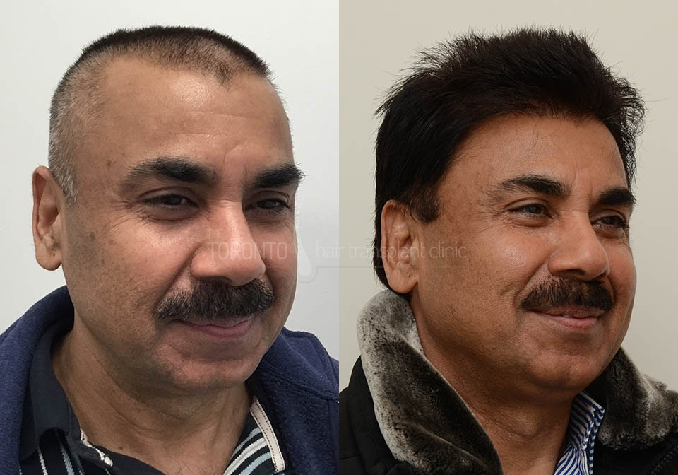 FUE-Hair-Transplant-Before-After-P3 (1)