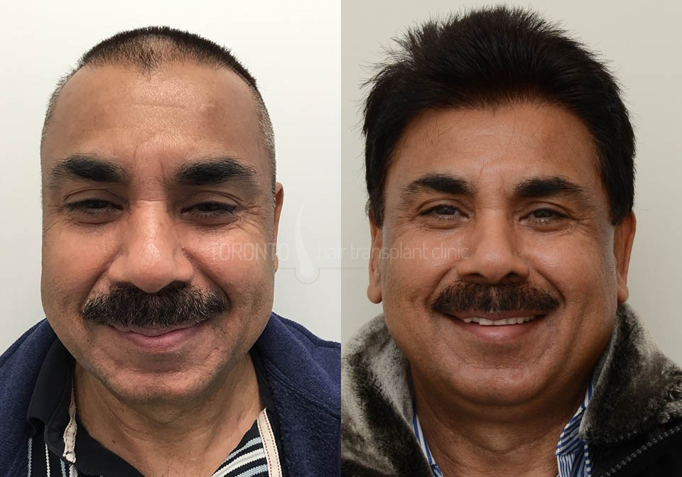 FUE-Hair-Transplant-Before-After-P3 (2)