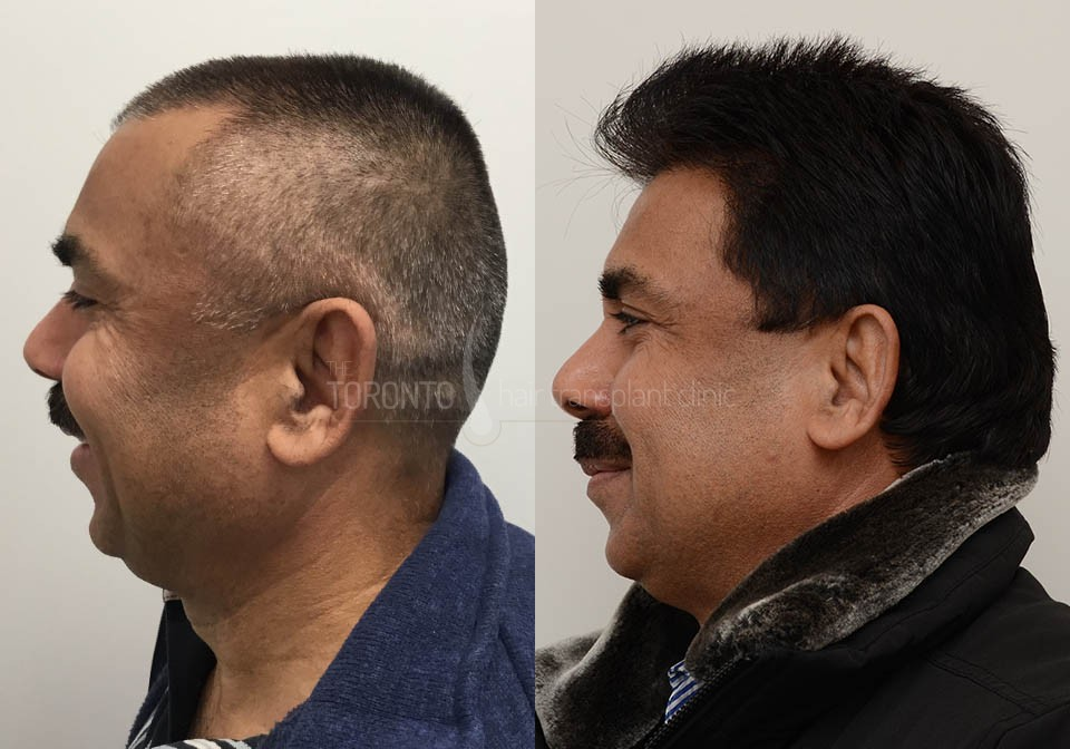 FUE-Hair-Transplant-Before-After-P3 (3)