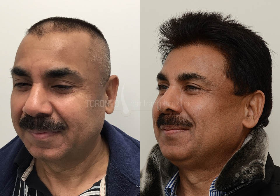 FUE-Hair-Transplant-Before-After-P3 (4)