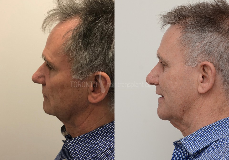 FUE-Hair-Transplant-Before-After-P4 (1)
