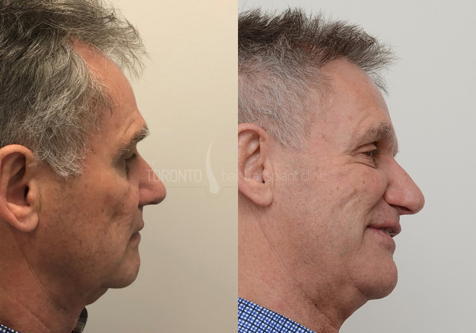 FUE-Hair-Transplant-Before-After-P4 (2)