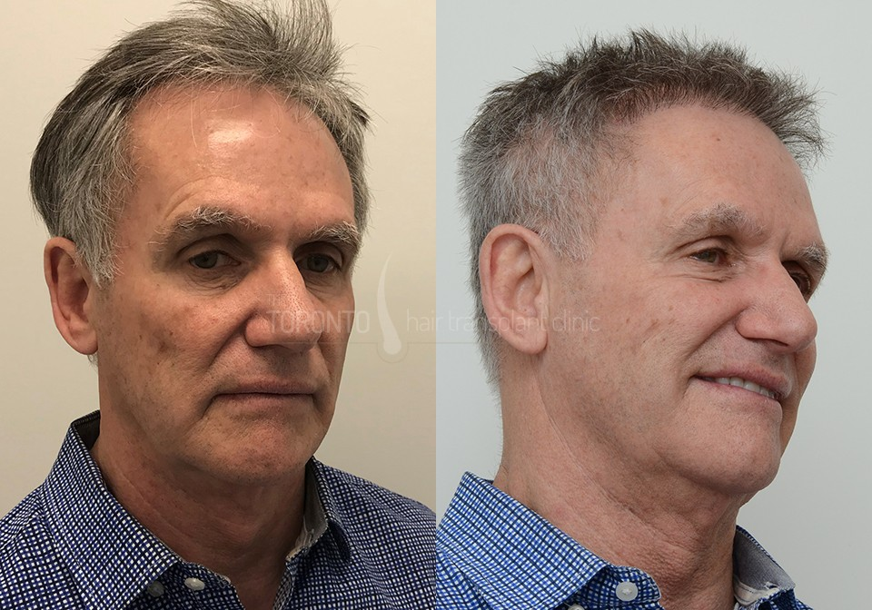 FUE-Hair-Transplant-Before-After-P4 (3)