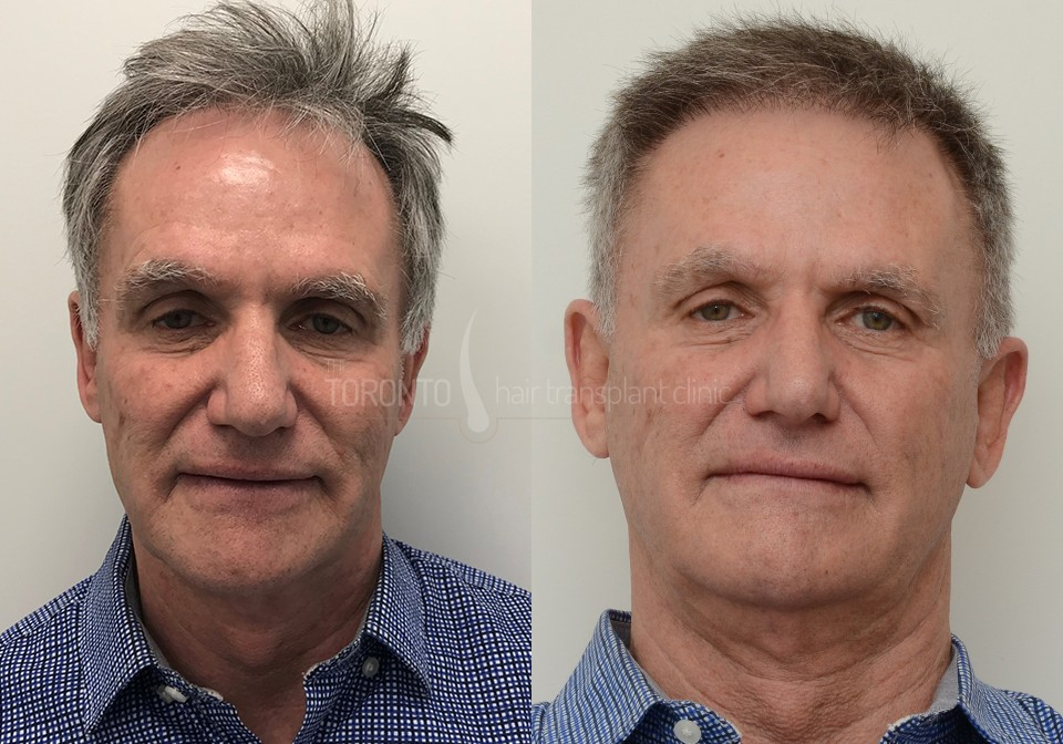 FUE-Hair-Transplant-Before-After-P4 (4)