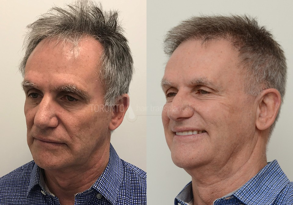 FUE-Hair-Transplant-Before-After-P4 (5)