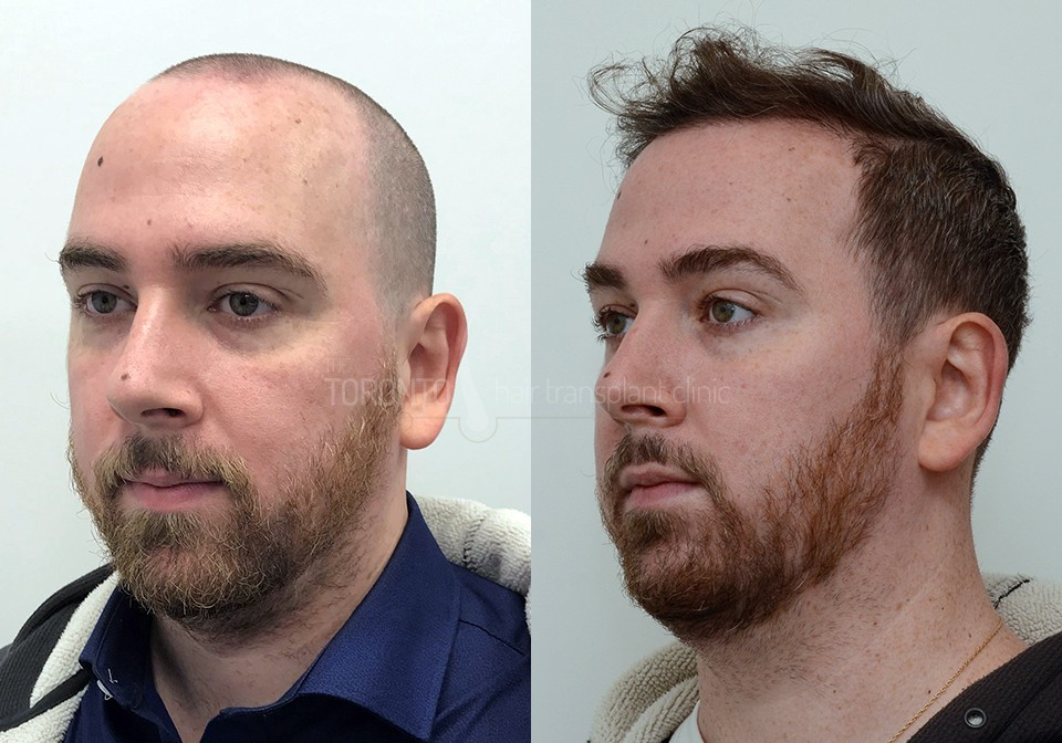 FUE-Hair-Transplant-Before-After-P5 (1)
