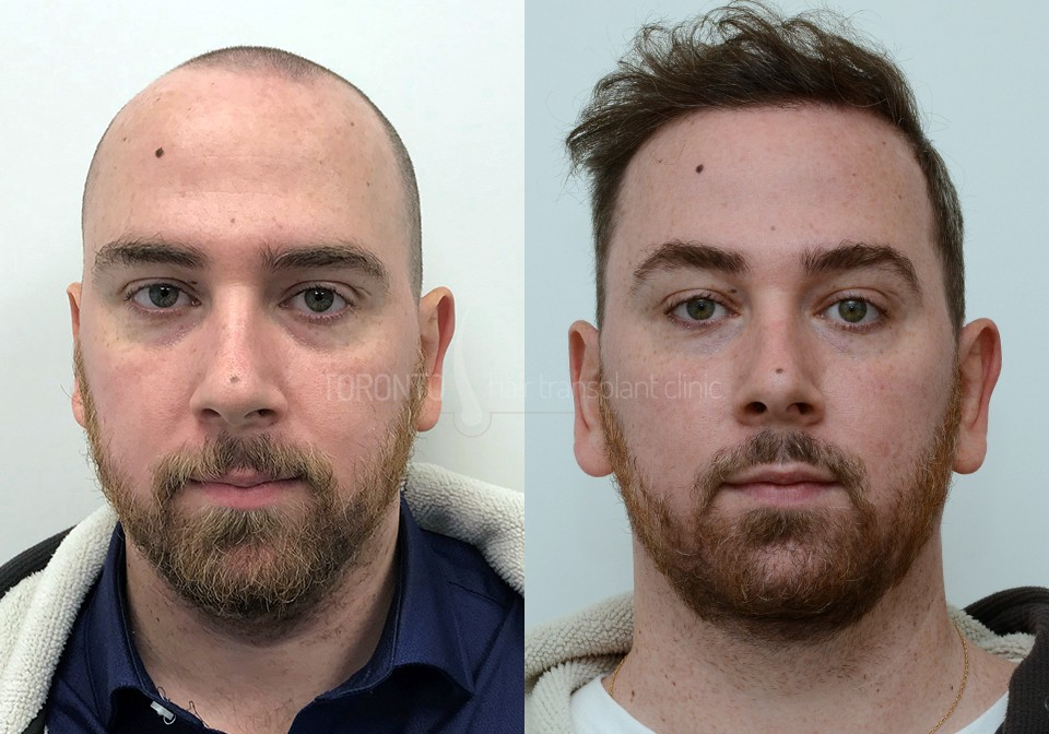 FUE-Hair-Transplant-Before-After-P5 (2)