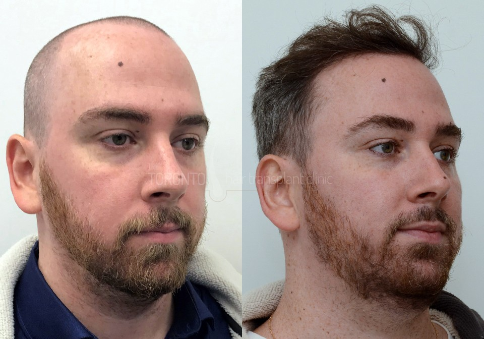 FUE-Hair-Transplant-Before-After-P5 (3)