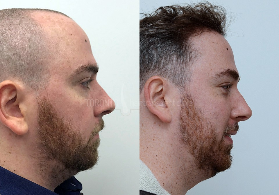 FUE-Hair-Transplant-Before-After-P5 (4)
