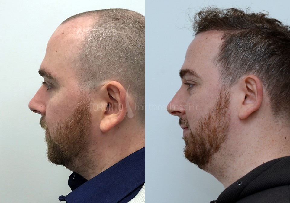 FUE-Hair-Transplant-Before-After-P5 (5)