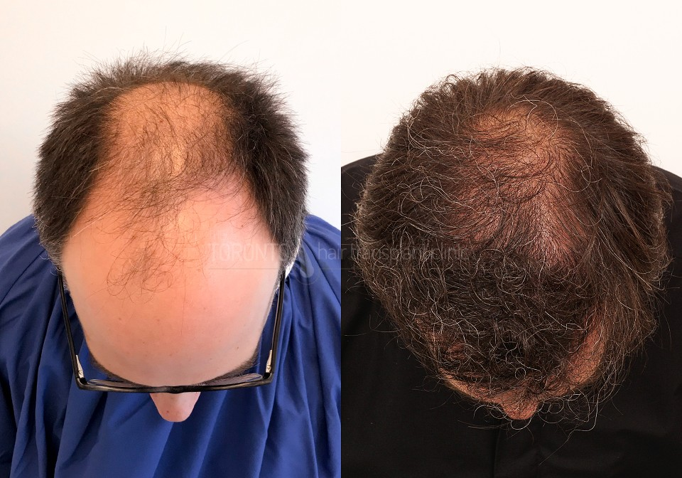 FUE-Hair-Transplant-Before-After-P6 (1)