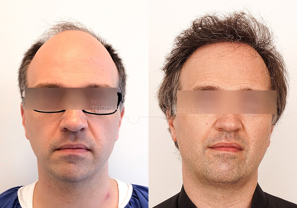 FUE-Hair-Transplant-Before-After-P6 (2)