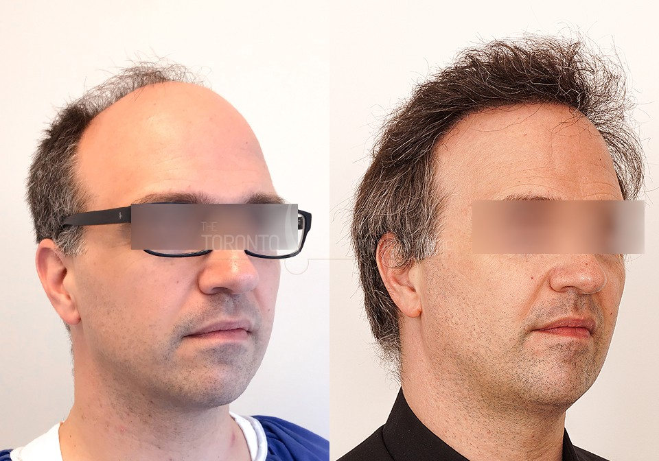 FUE-Hair-Transplant-Before-After-P6 (3)