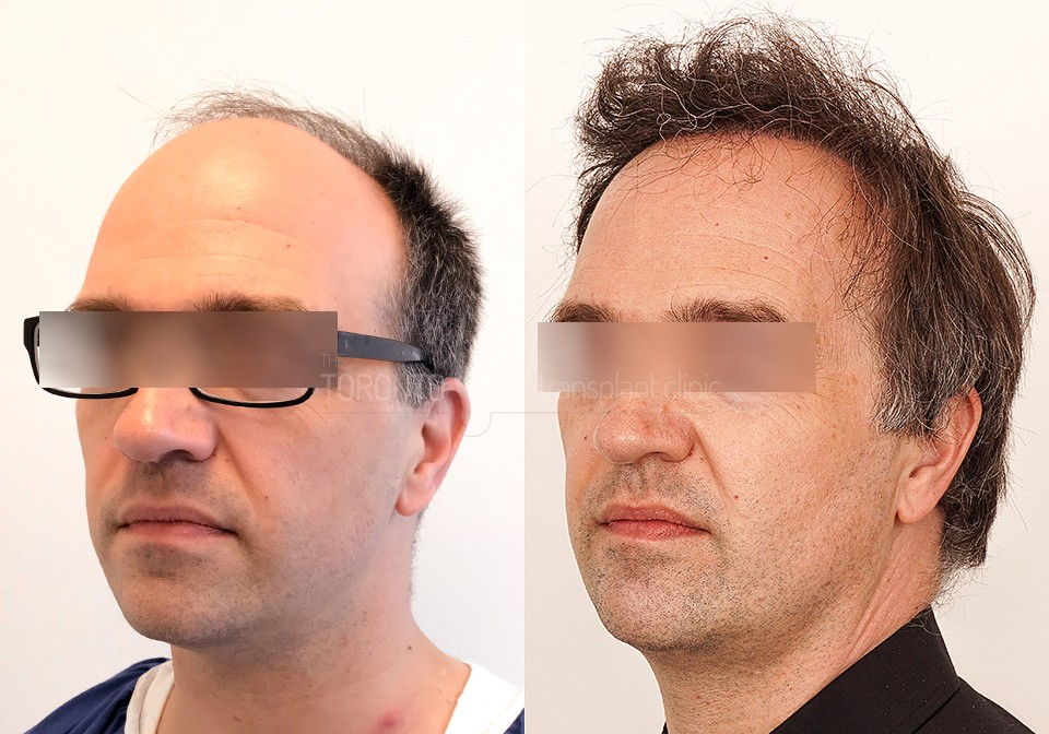 FUE-Hair-Transplant-Before-After-P6 (4)