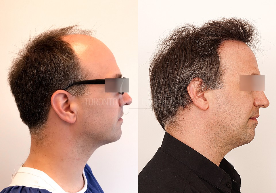 FUE-Hair-Transplant-Before-After-P6 (5)