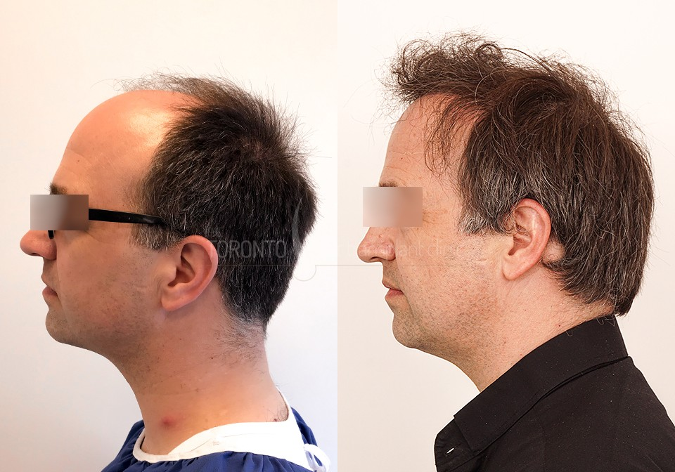 FUE-Hair-Transplant-Before-After-P6 (6)