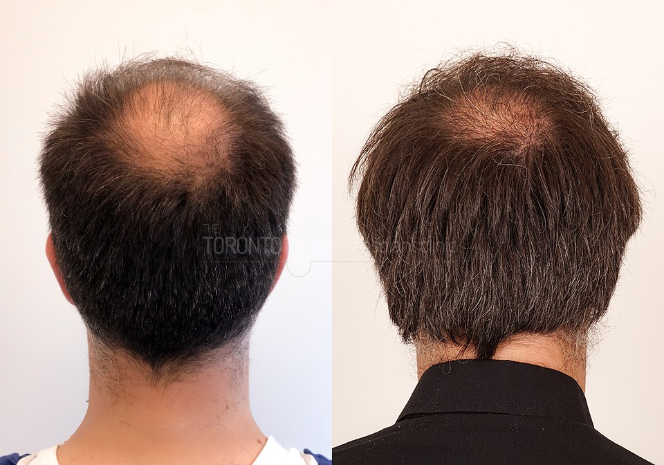 FUE-Hair-Transplant-Before-After-P6 (7)