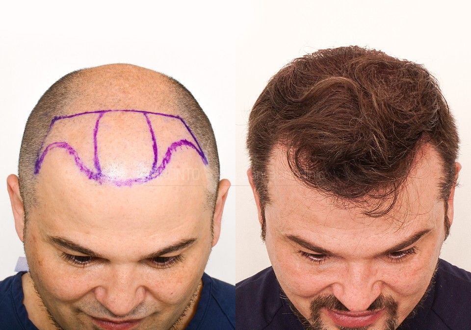FUE-Hair-Transplant-Before-After-P7 (1)
