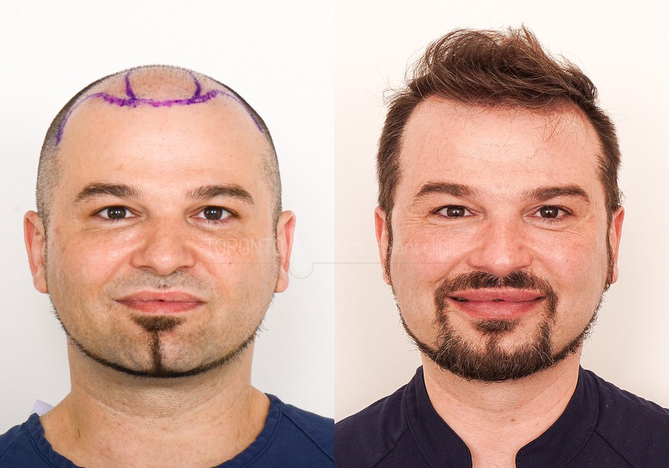 FUE-Hair-Transplant-Before-After-P7 (2)