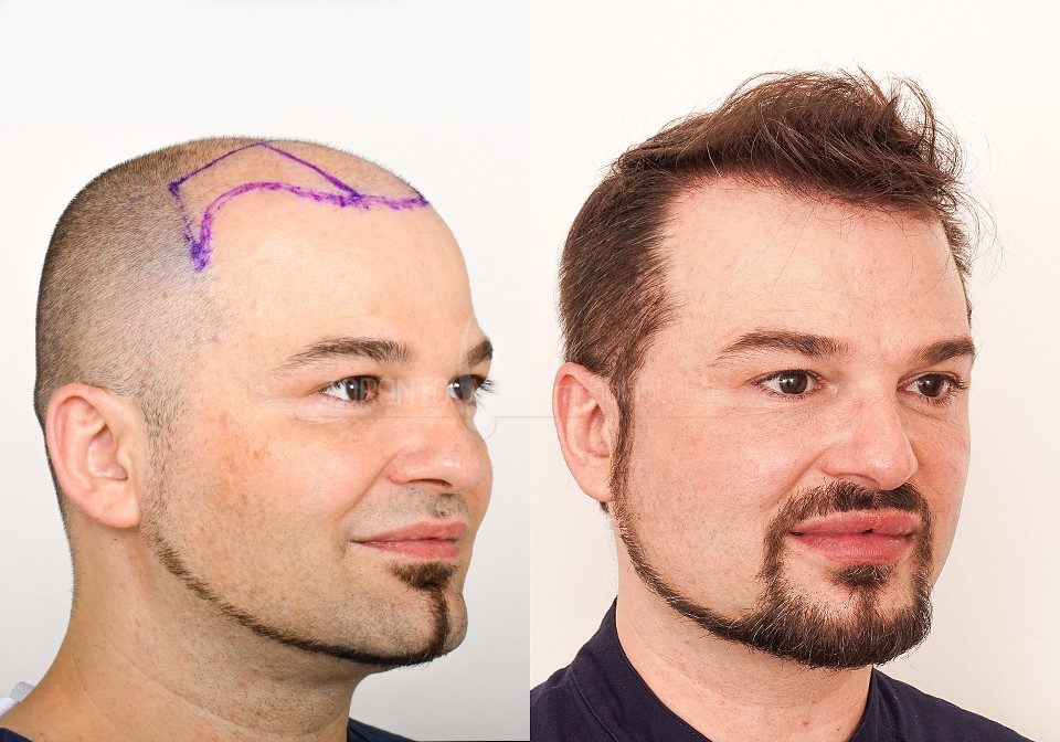FUE-Hair-Transplant-Before-After-P7 (3)