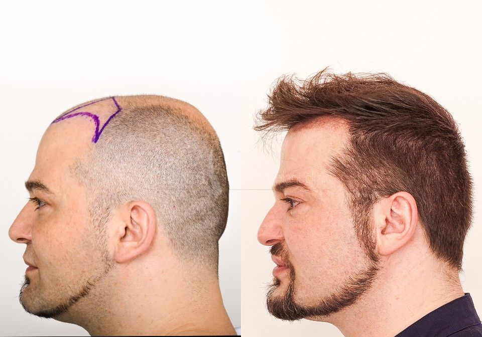 FUE-Hair-Transplant-Before-After-P7 (5)
