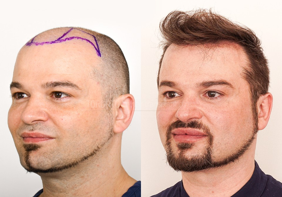 FUE-Hair-Transplant-Before-After-P7 (6)