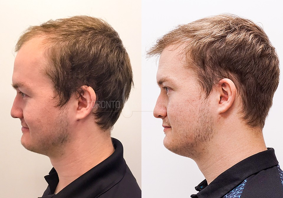 FUE-Hair-Transplant-Before-After-P8 (1)