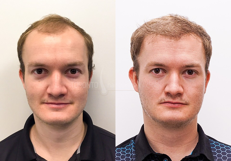 FUE-Hair-Transplant-Before-After-P8 (2)