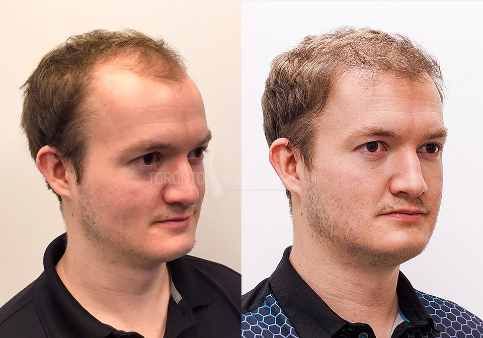 FUE-Hair-Transplant-Before-After-P8 (3)