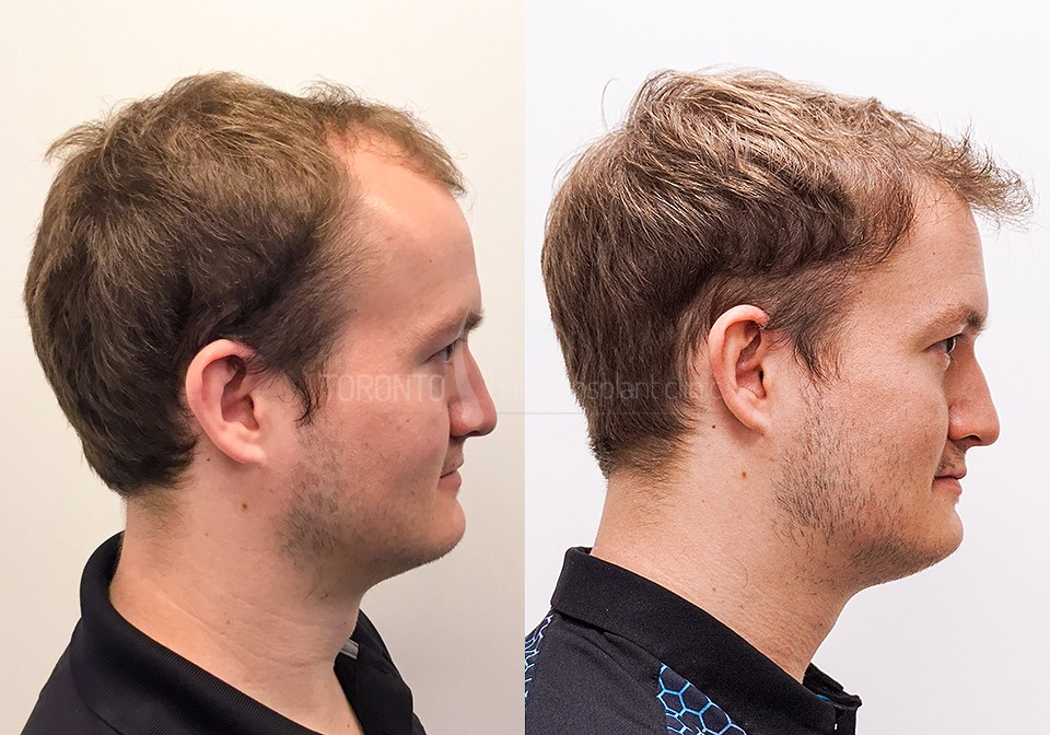FUE-Hair-Transplant-Before-After-P8 (4)