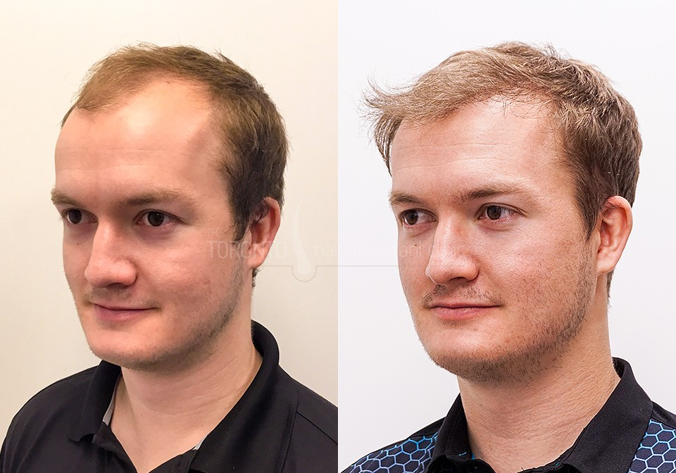 FUE-Hair-Transplant-Before-After-P8 (5)